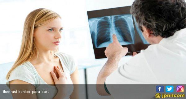 Metode Gampang Ukur Kebugaran Jantung serta Paru- Paru, Tidak Butuh Cek ke Rumah Sakit